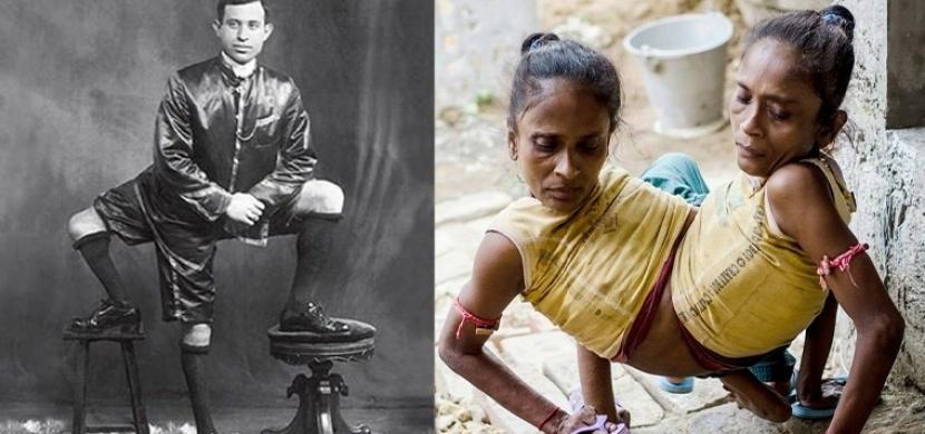 Lidé, kteří se narodili s částmi těla navíc. Objevovali se v minulosti a bohužel i dnes